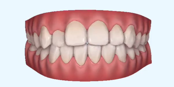 Teeth With A Crossbite