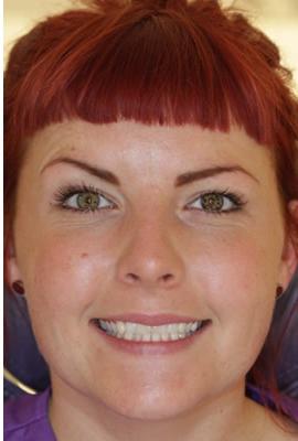Laura before botox