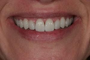 After Gum Surgery