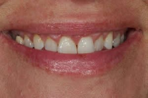 Before Gum Surgery
