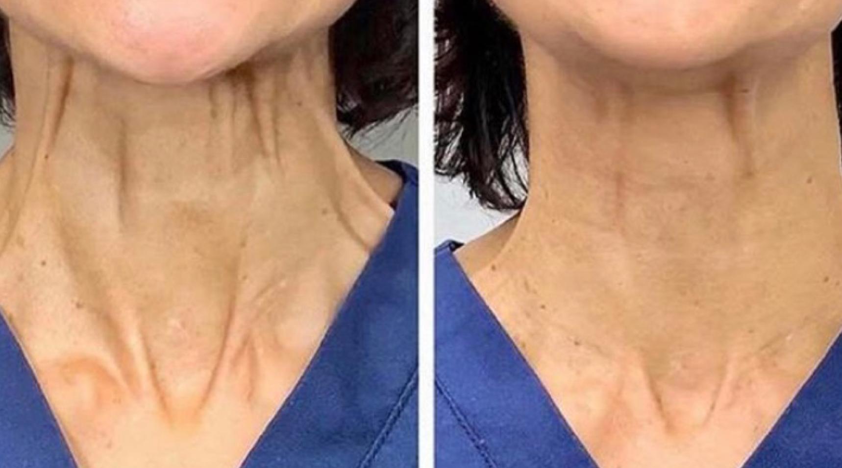 Neck Lift Botox