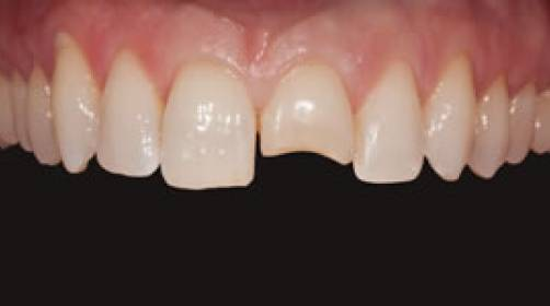 fractured teeth can be repaired with composite bonding