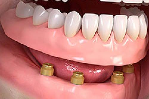 Removable dentures straumann