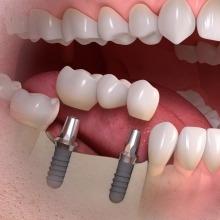 Dental implant multi-tooth treatment
